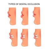 Morsure dentaire dentistry illustration stock