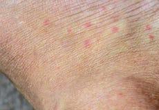 Morsures de moustique Photo stock