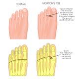 Morton ` s palec u nogi Obrazy Royalty Free