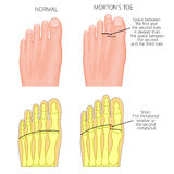 Morton`s toe Royalty Free Stock Images