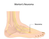 Mortons neuroma. Abnormal growth of nerve tissue in foot, eps10 Royalty Free Stock Photos