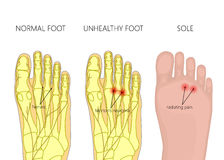 Mortons neuroma Royaltyfri Foto