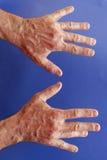 Mãos de um homem com contração de Dupuytren no azul Imagens de Stock Royalty Free