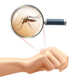 Mosquito on hand. Realistic composition with human hand and mosquito in magnifying glass zoom vector illustration Stock Photo