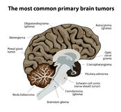 The most common primary brain tumors Royalty Free Stock Images