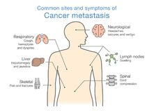 Most common sites and symptoms of Cancer Metastasis. Illustration about medical diagram of deadly diseases royalty free illustration