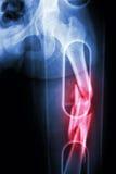 A mostra do raio X do filme pulveriza o corpo do fêmur de fratura (o osso da coxa) Foi emendado Imagens de Stock Royalty Free