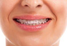 Mostrar los dientes blancos con los apoyos Fotos de archivo