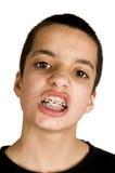 Mostras adolescentes suas cintas dentais fotos de stock