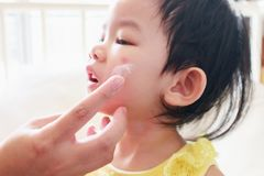 Mother applying antiallergic medicine cream at girl face with skin rash and allergy royalty free stock image
