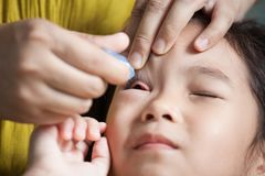 Mother dripping eye medicine in girl eyes Royalty Free Stock Photography