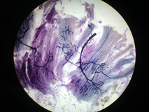 Motor nerve endings. Stained and mounted for microscopic examination royalty free stock photography