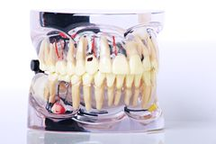 Moulage of dental problems expaind. Close up of Dental Moulage with teeth problems isolated on white background stock photo