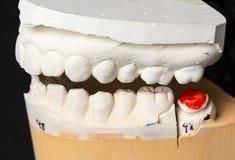 Moulage des dents prises pour des orthodonties Photos stock