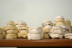 Moulages de plâtre de dentier Photos stock