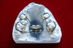 Moulages dentaires Photographie stock libre de droits