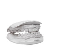 Mould of human teeth Royalty Free Stock Photo