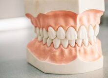 Free Mould Of Human Teeth. Oral Health Concept. Mould Of Human Teeth. Close Up Dental Gypsum Model. Plaster Cast Human Jaws Prothetic Royalty Free Stock Image - 170701826