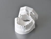 Moules dentaires de correction images libres de droits
