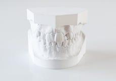Moules orthodontiques photographie stock libre de droits