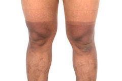 Mountain bike cyclist with two tone level sunburn on his legs Royalty Free Stock Image