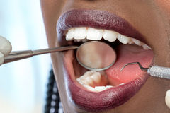 Mouth of african woman with hatchet and mouth mirror. Stock Photos