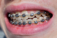 Mouth with bracket Stock Photo