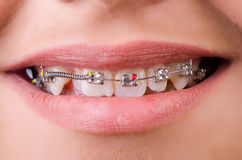 Mouth with brackets braces Royalty Free Stock Photo