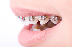 Mouth with brackets braces. In medical concept Royalty Free Stock Image