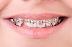 Mouth with brackets braces Stock Photos