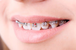 Mouth with brackets braces Royalty Free Stock Photography