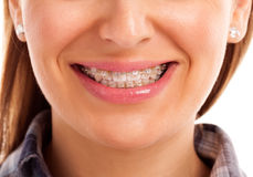 Mouth care teeth with braces Royalty Free Stock Photo