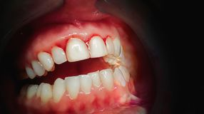 Mouth com gomas do sangramento em um fundo escuro fotos de stock