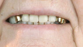 Mouth of elderly woman with false teeth stock video footage
