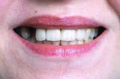 Mouth with four prosthetic upper teeth Stock Photo