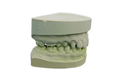 Mouth - gypsum model Stock Images
