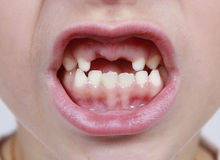 Mouth missing teeth royalty free stock photo