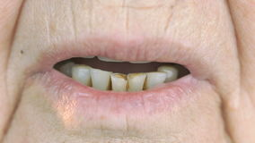 Mouth of old woman aged 80s with false teeth stock video footage