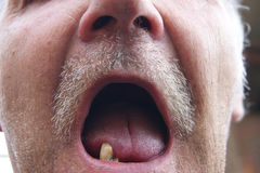 Mouth with rotten teeth Stock Photography