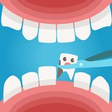Mouth. View from the inside. Caries Royalty Free Stock Photo