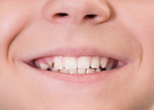 Mouth with white teeth. Close-up of young boy mouth with white teeth Royalty Free Stock Photography