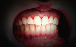 Free Mouth With Bleeding Gums On A Dark Background Royalty Free Stock Image - 136343566