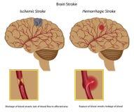 Movimiento del cerebro stock de ilustración