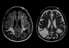 Movimiento del cerebro Fotografía de archivo libre de regalías
