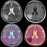 Movimiento del cerebro, MRI imagen de archivo libre de regalías