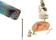 Moxibustion, chinese warming therapy royalty free stock photos