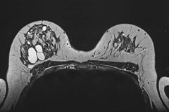 MR mammography, cysts Stock Image