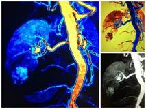 Mra更低的杆肾脏细胞癌拼贴画 免版税库存照片