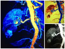 Mra lower pole renal  cell carcinoma collage Royalty Free Stock Photos