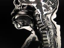 MRI子宫颈脊椎 库存照片